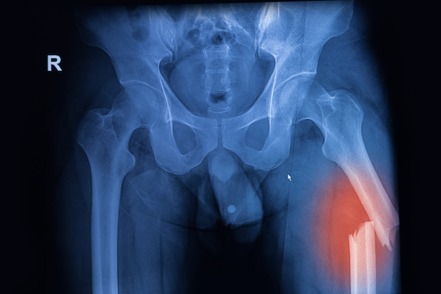 X-ray image of both hip showing femur fracture at left side